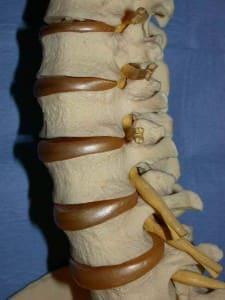 Columna vertebral, se observan las vértebras, los discos y raices nerviosas