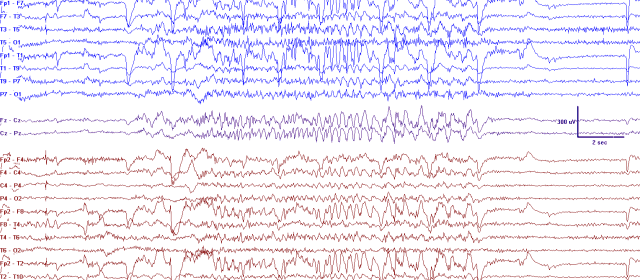 Psychogenic Non-Epileptic Seizures in a Surgical  Epilepsy Unit